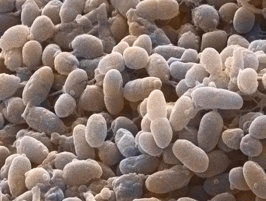 Acetobacter Aceti Photograph - Acetobacter Bacteria, Sem by Power And Syred