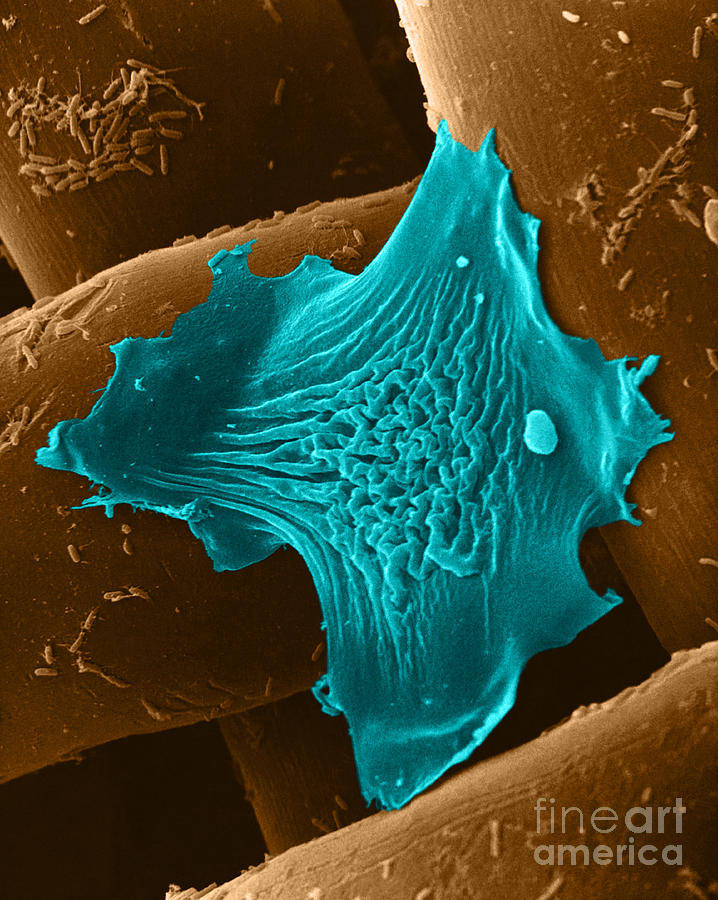 Amoeba Crawling On Nylon Mesh, Sem Photograph