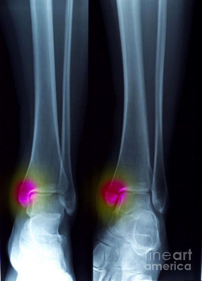 Ankle Fracture Photograph
