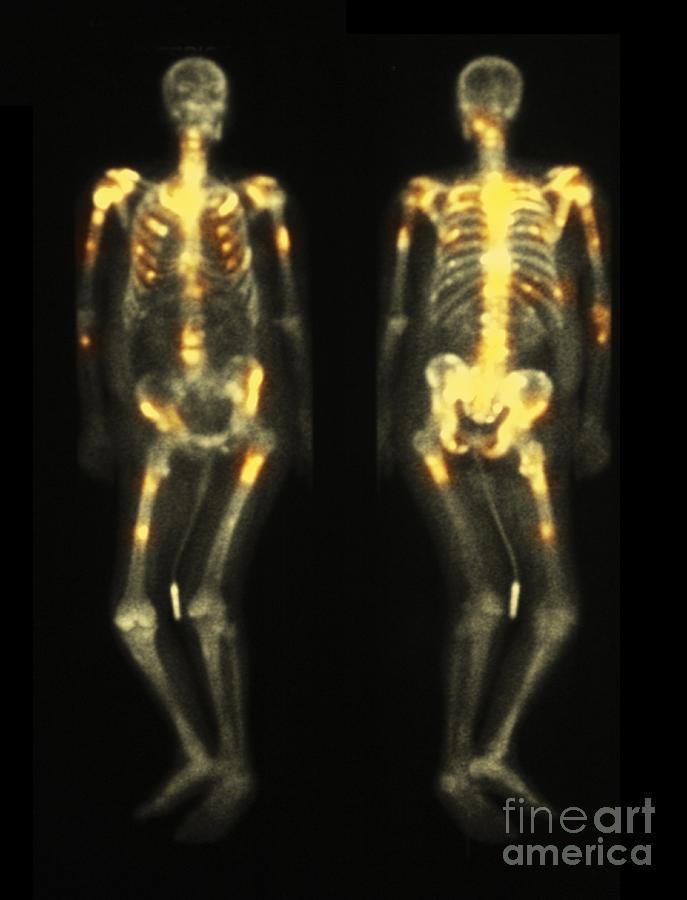Spine Photograph - Bone Scan Showing Multiple Metastases by Scott Camazine
