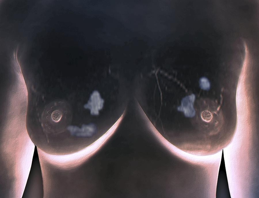 как определить рак грудины у женщин фото № 68566 без смс