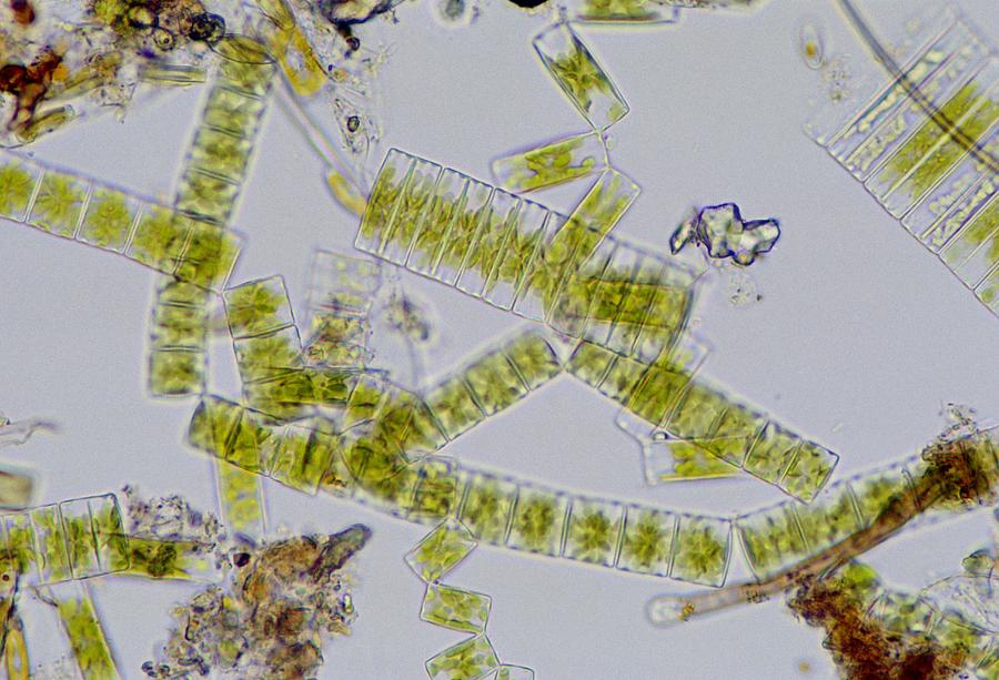 Colonial Freshwater Diatoms Photograph
