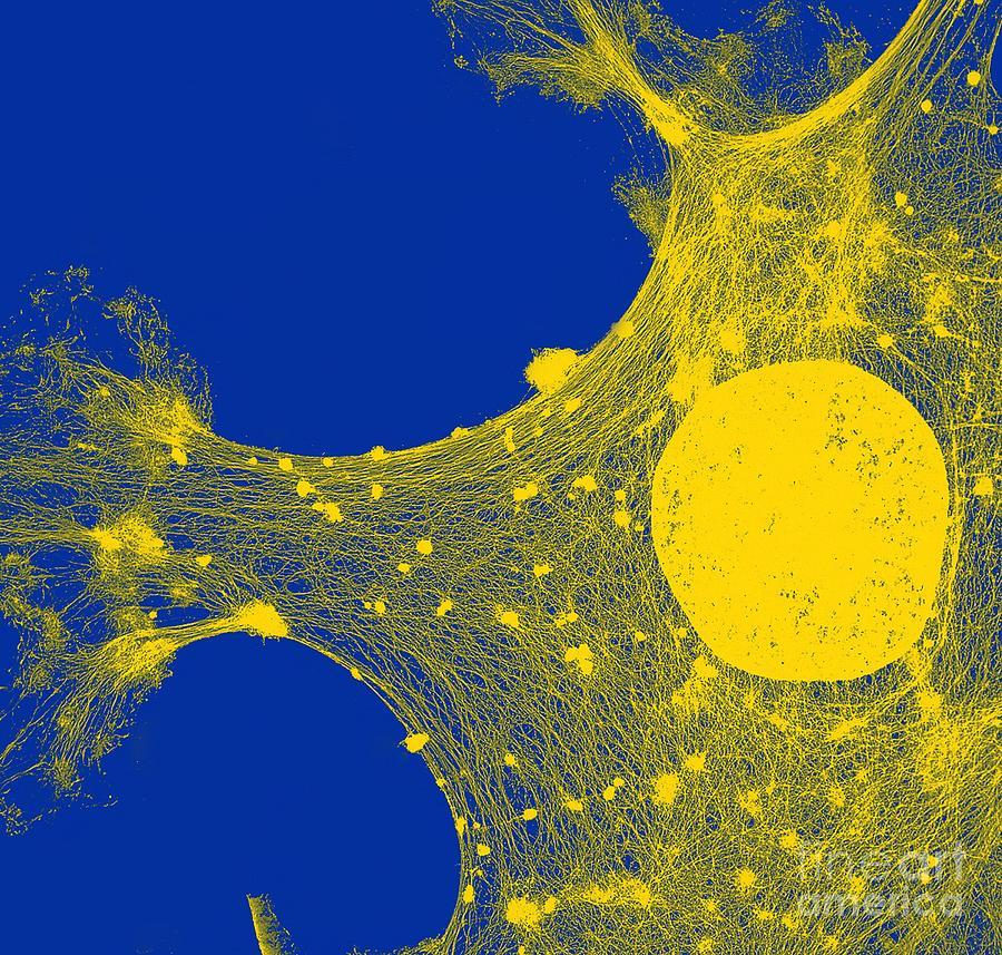 Cytoskeleton Tem Human Skin Cell Photograph