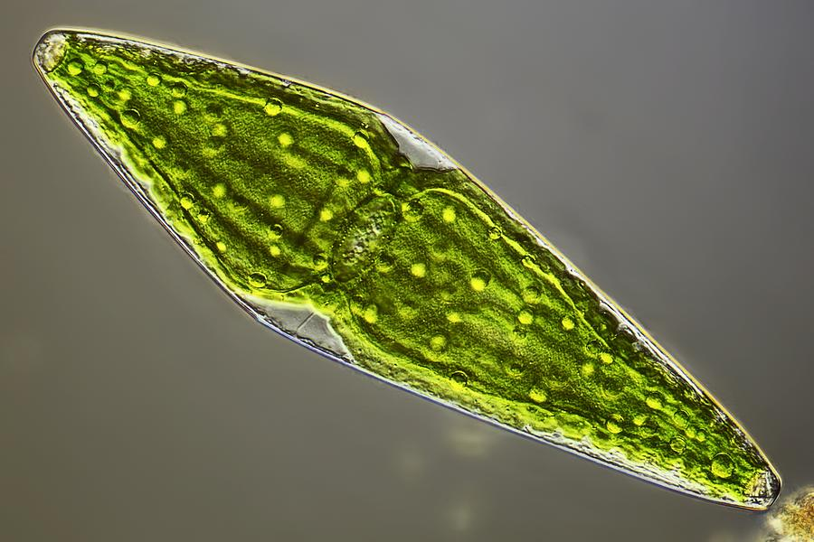 Algae Photograph - Desmid, Light Micrograph by Science Photo Library