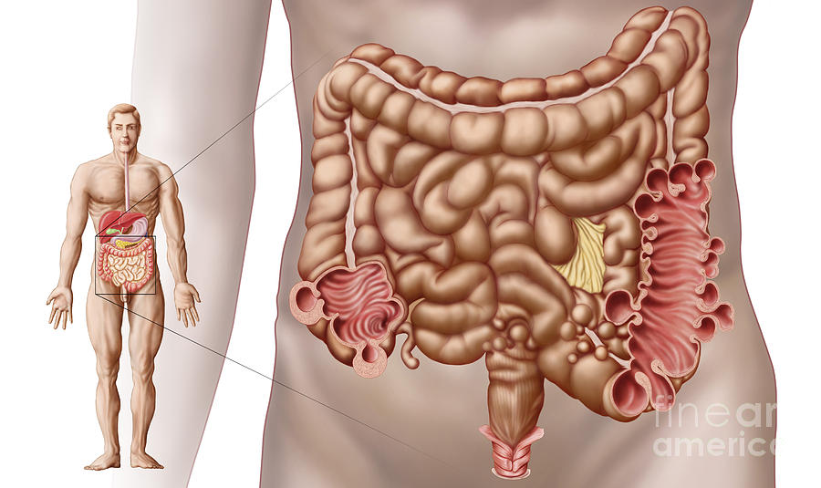 Diverticulitis In The Descending Colon Digital Art
