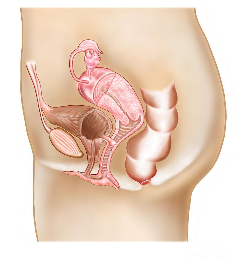 Female Vesicovaginal Fistula, Cross Digital Art
