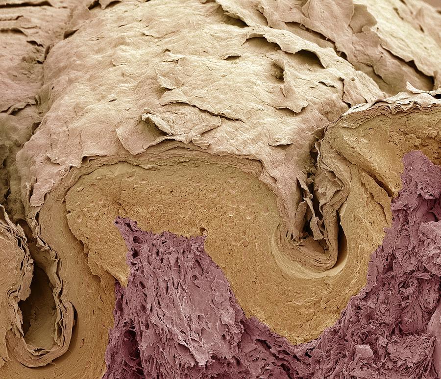 Finger Skin, Sem Photograph