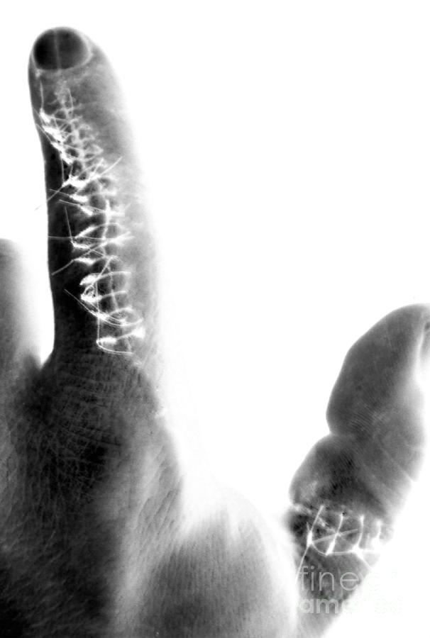 Finger X-ray Photograph  - Finger X-ray Fine Art Print
