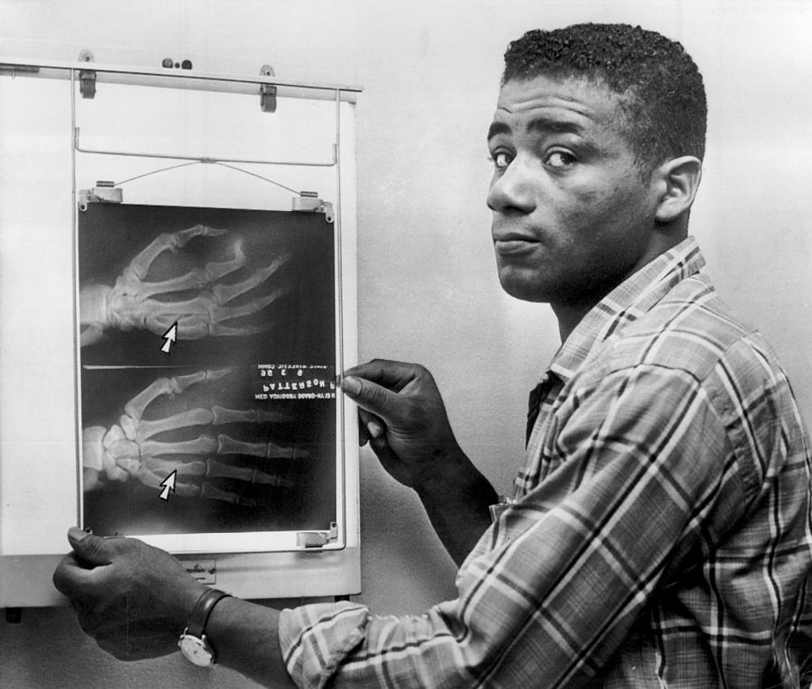 Floyd Patterson Looking At X Ray Photograph