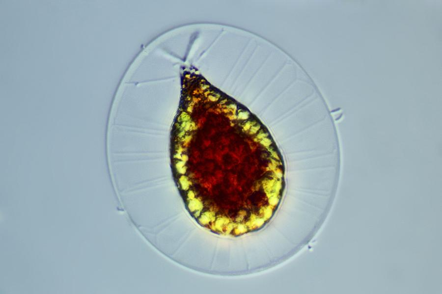 Haematococcus Alga, Light Micrograph Photograph