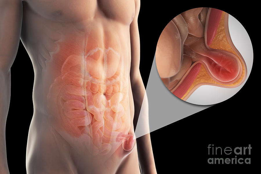 steroid shots infections