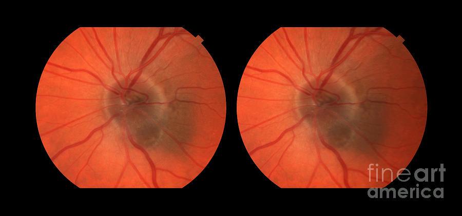 Melanoma Of The Optic Nerve Stereo Image Photograph