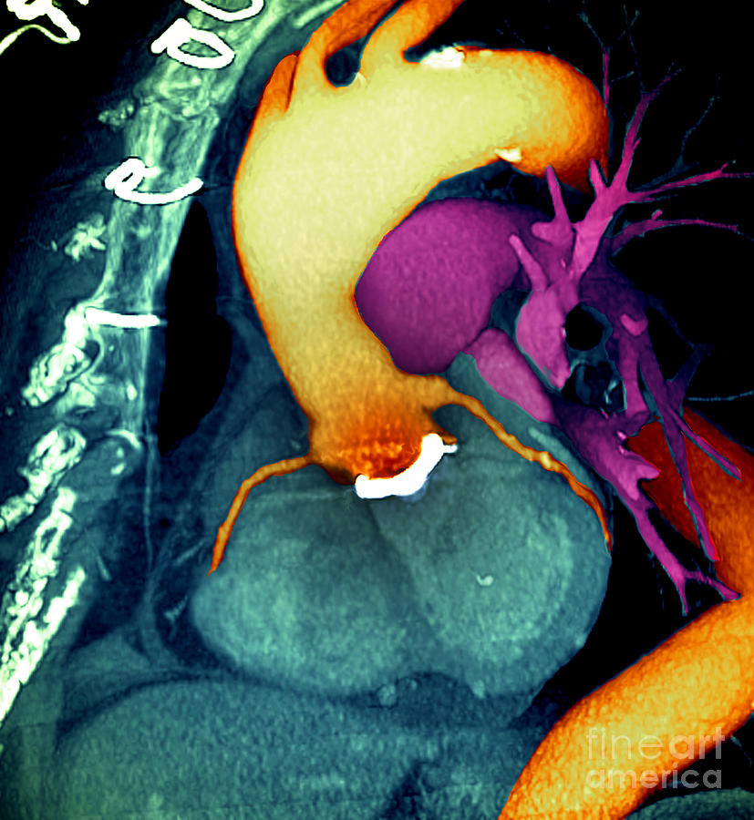 Aorta Photograph - Prosthetic Heart Valve 3d Ct Scan by Spl