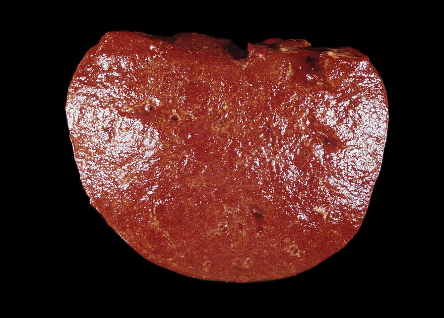spleen cancer gross specimen photograph by science photo
