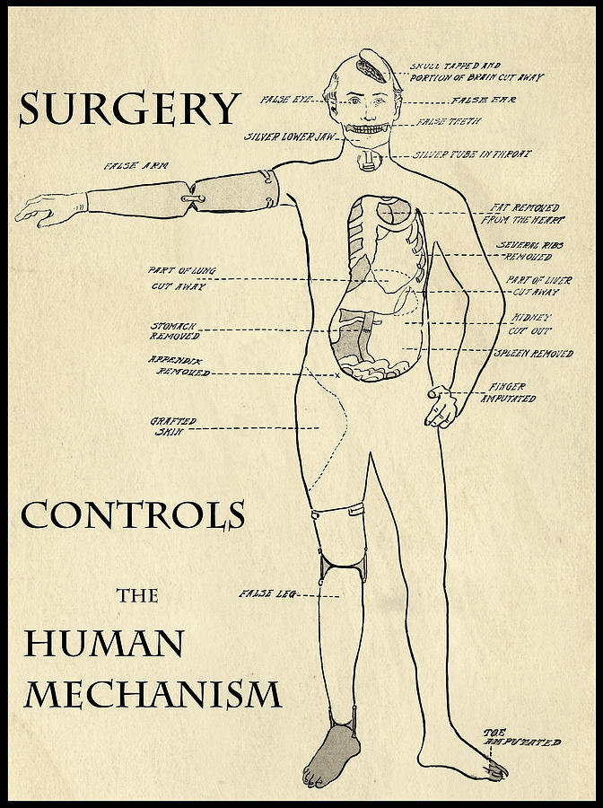 Surgery Controls The Human Mechanism   1906 Digital Art