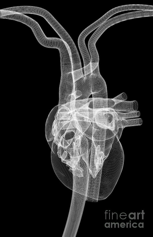 Anatomy Photograph - The Heart And Major Vessels by MedicalRF