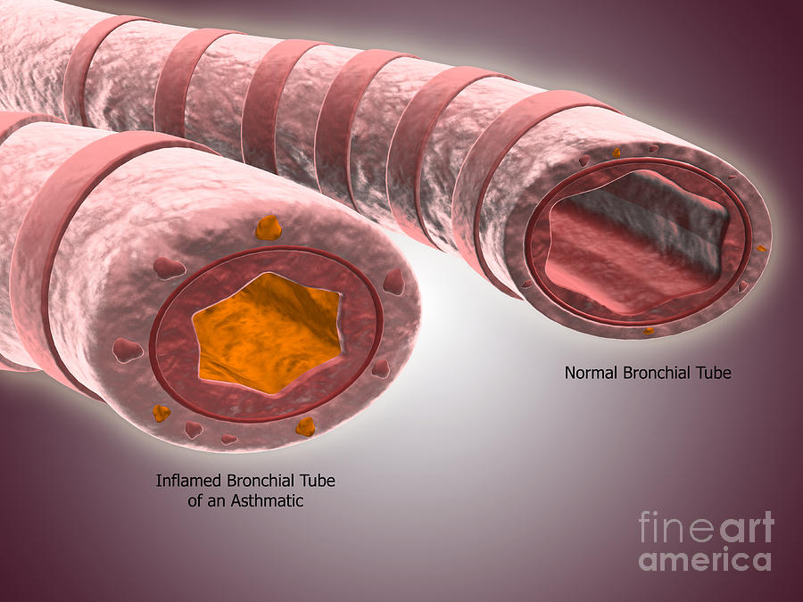 Trachea Cross-section Showing Normal by Stocktrek Images