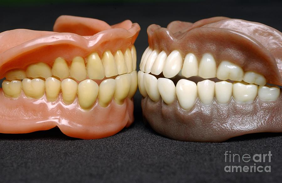 Close-up Photograph - Two Sets Of Dentures by Medicimage