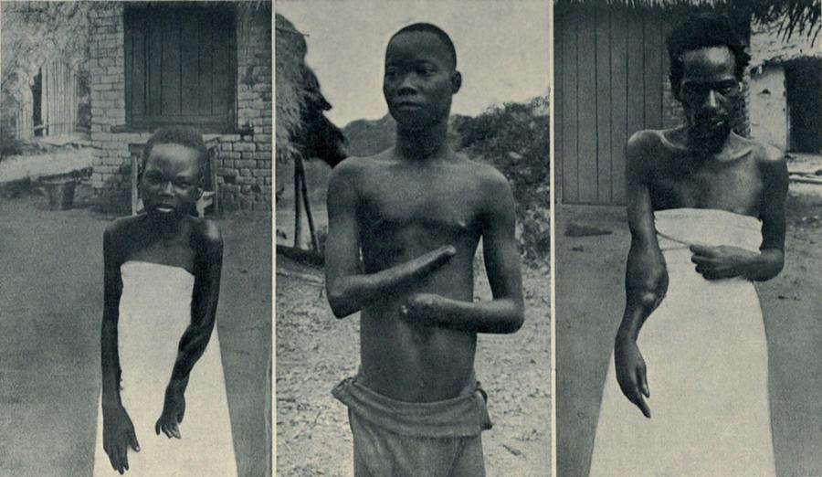 Atrocities Of The Rubber Slavery Photograph