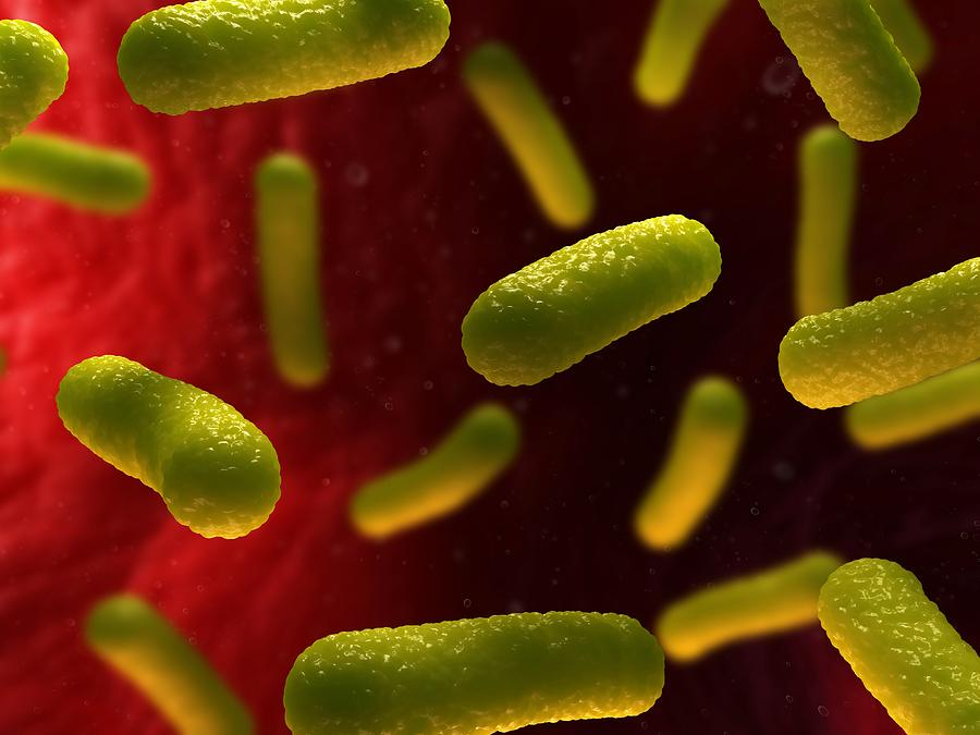 Artwork Photograph - Bacterial Infection, Artwork by Sciepro