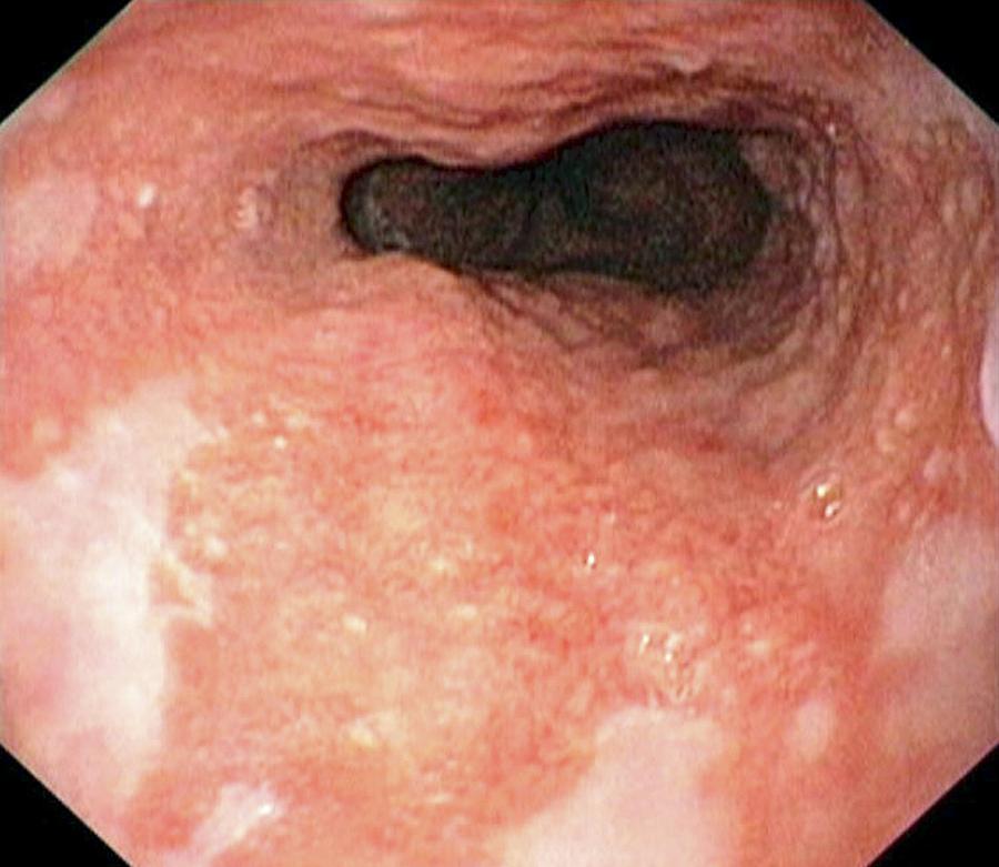 Локтевой сустав лечение эпикондилит локтевого сустава