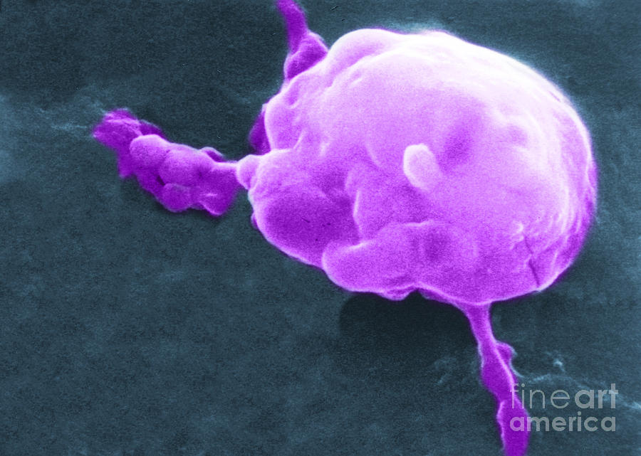 Cancer Cell Death, Sem 5 Of 6 Photograph  - Cancer Cell Death, Sem 5 Of 6 Fine Art Print