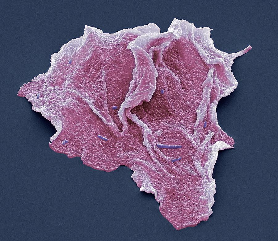 Cheek Squamous Cells, Sem Photograph