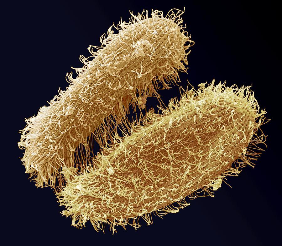Protozoan Photograph - Ciliate Protozoa, Sem by Steve Gschmeissner