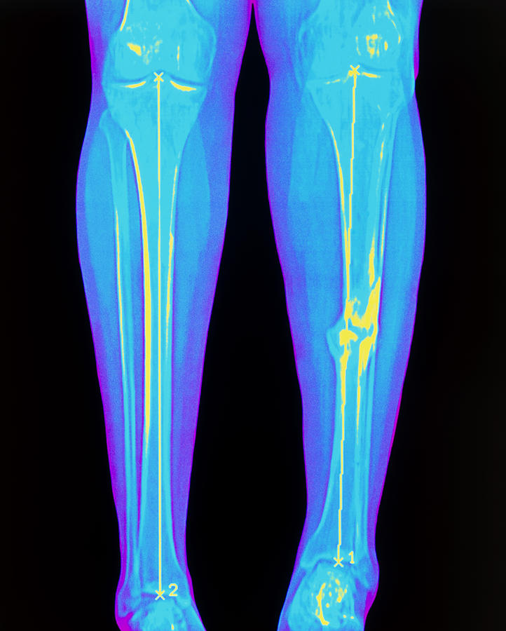Coloured X-ray Of Fractured Shin Bone (tibia) Photograph ...