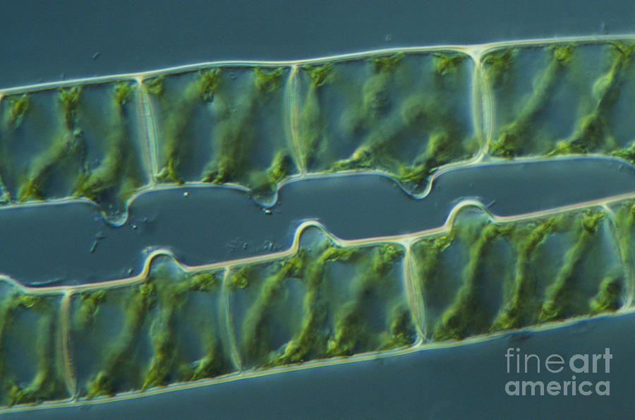 Conjugation In Spirogyra Algae, Lm 3 Photograph  - Conjugation In Spirogyra Algae, Lm 3 Fine Art Print