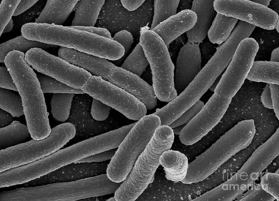 Escherichia Coli Bacteria, Sem Photograph