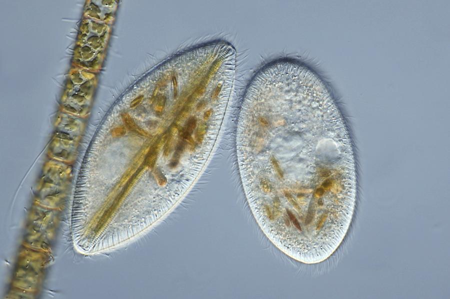 Frontonia Protozoa, Light Micrograph Photograph