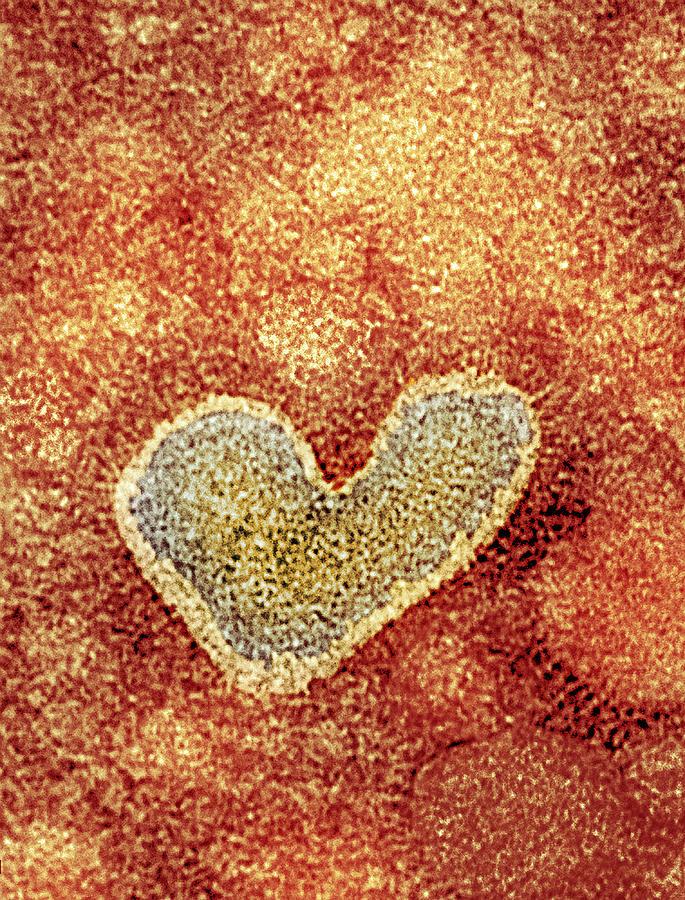 H5n1 Avian Influenza Virus Particle, Tem Photograph