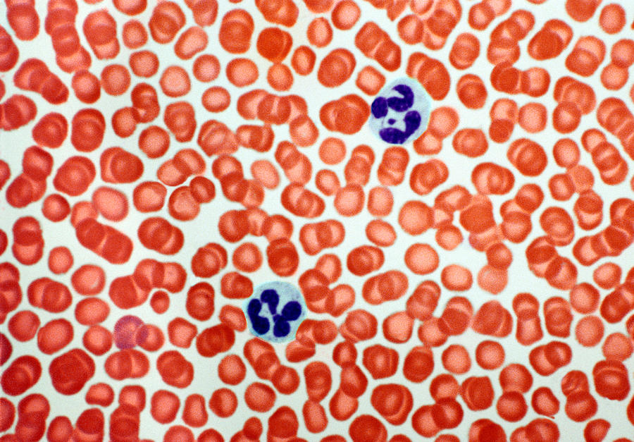 Human Blood Cells, Light Micrograph Photograph