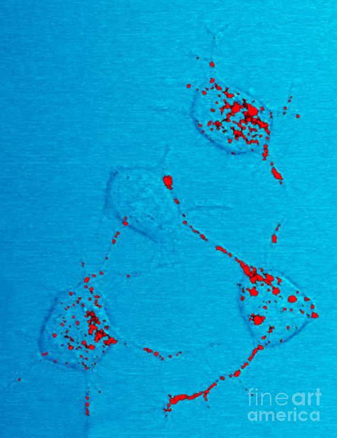Infectious Prion Protein Photograph