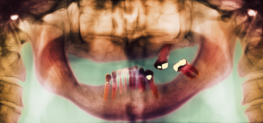 Loss Of Teeth, X-ray Photograph  - Loss Of Teeth, X-ray Fine Art Print