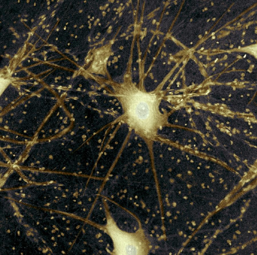 Motor Neurons, Light Micrograph Photograph  - Motor Neurons, Light Micrograph Fine Art Print