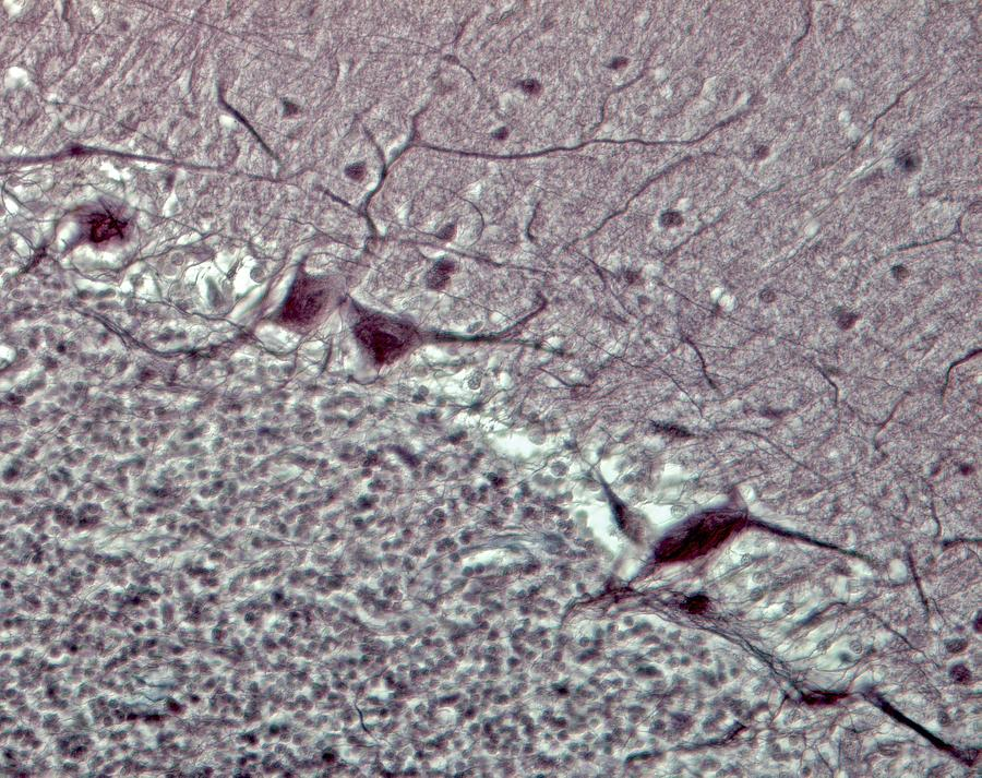 Purkinje Neurons, Light Micrograph Photograph