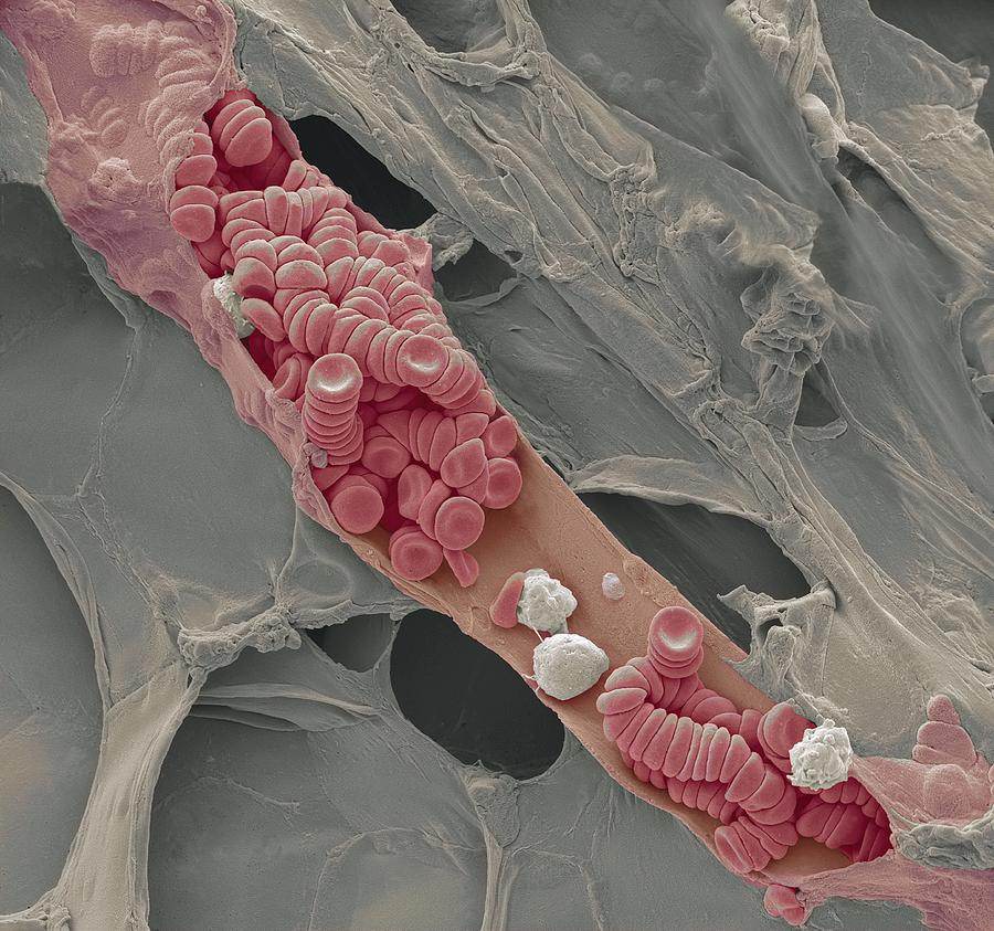 Ruptured Venule, Sem Photograph