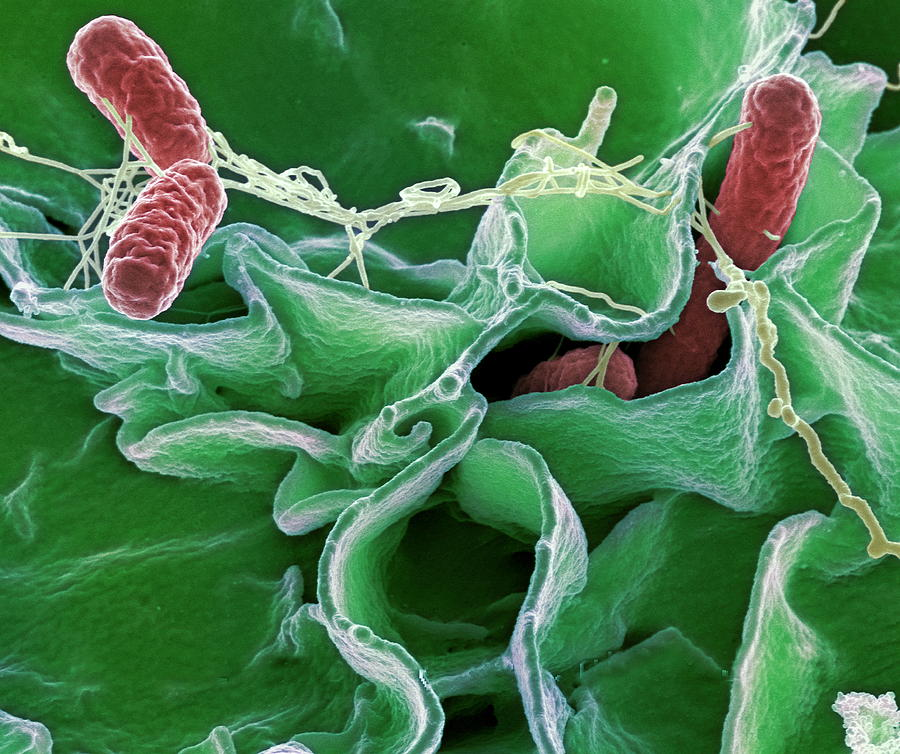 a research on extracting dna from the bacterium escherichia coli Genetic information passed from parent to offspring via dna and difficult even in the research transfer in escherichia coli (e coli) bacteria are simple.