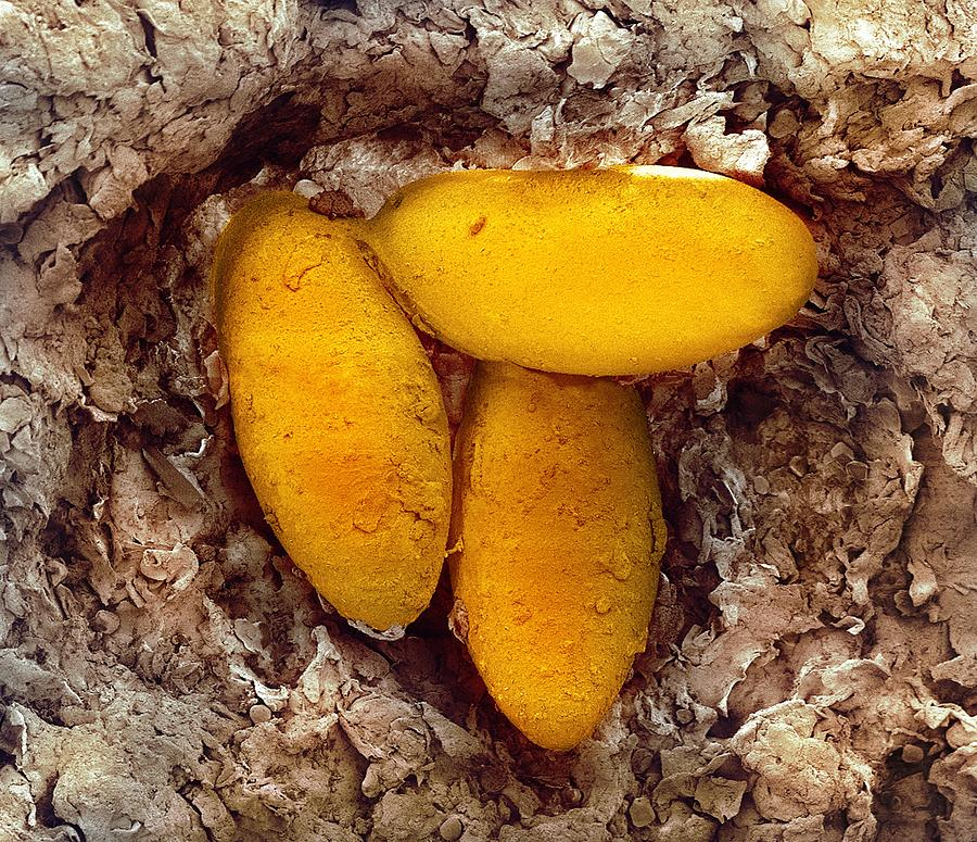 Sarcoptic Mange Mite Eggs, Sem by Steve Gschmeissner