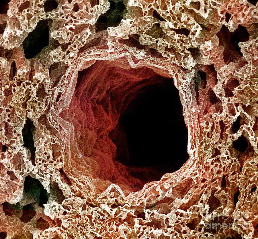 Sem Of Lung Photograph  - Sem Of Lung Fine Art Print