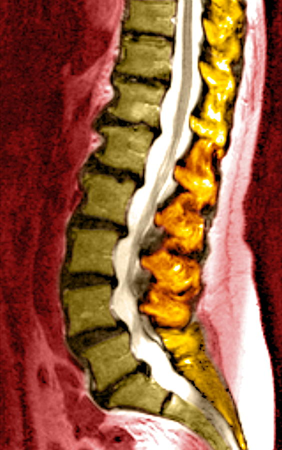 Spine Degeneration, Mri Scan Photograph