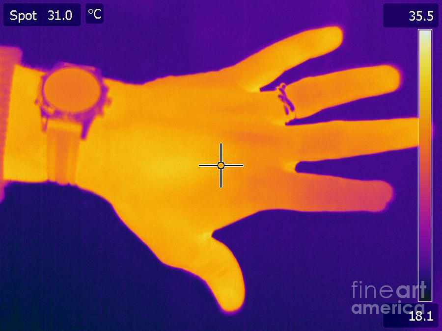 Thermogram Of A Hand Photograph