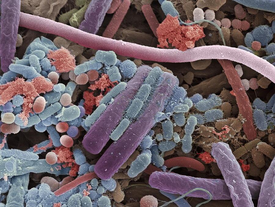 Фото та назви бактерій 18 фотография