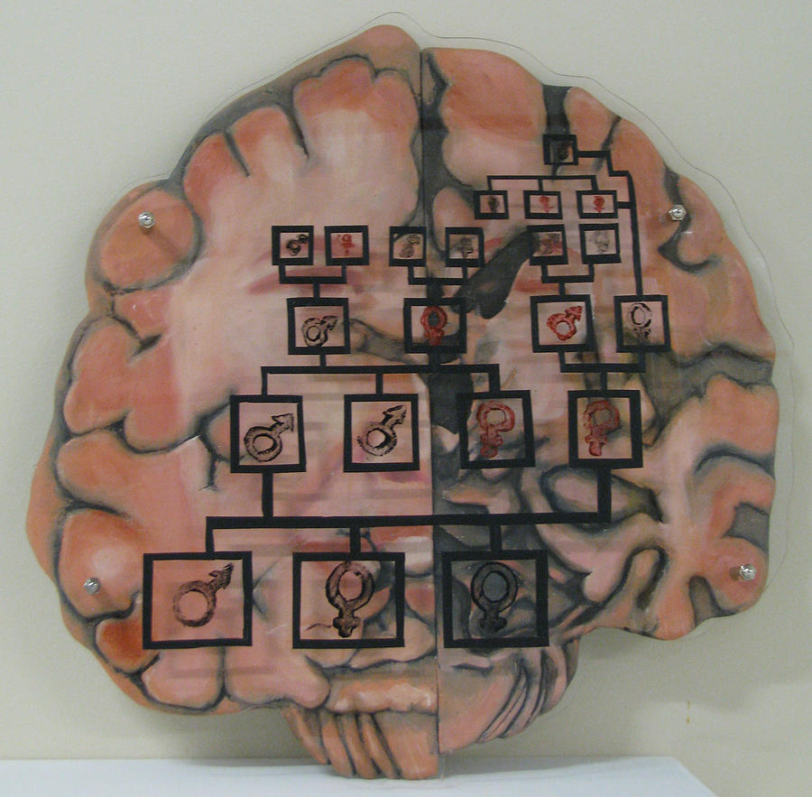 Your Brain On Alzheimers Painting  - Your Brain On Alzheimers Fine Art Print