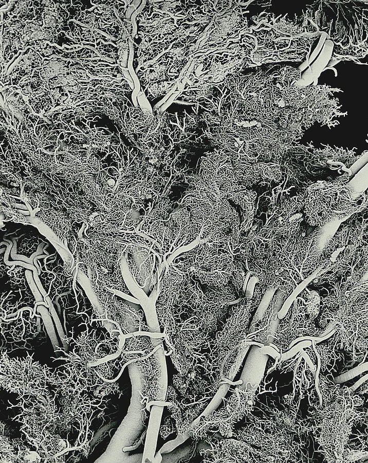 Blood Vessels, Sem Photograph