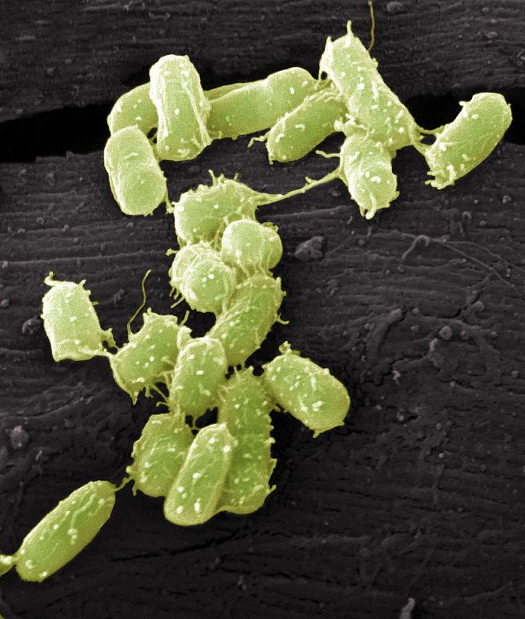 E. Coli Bacteria, Sem Photograph