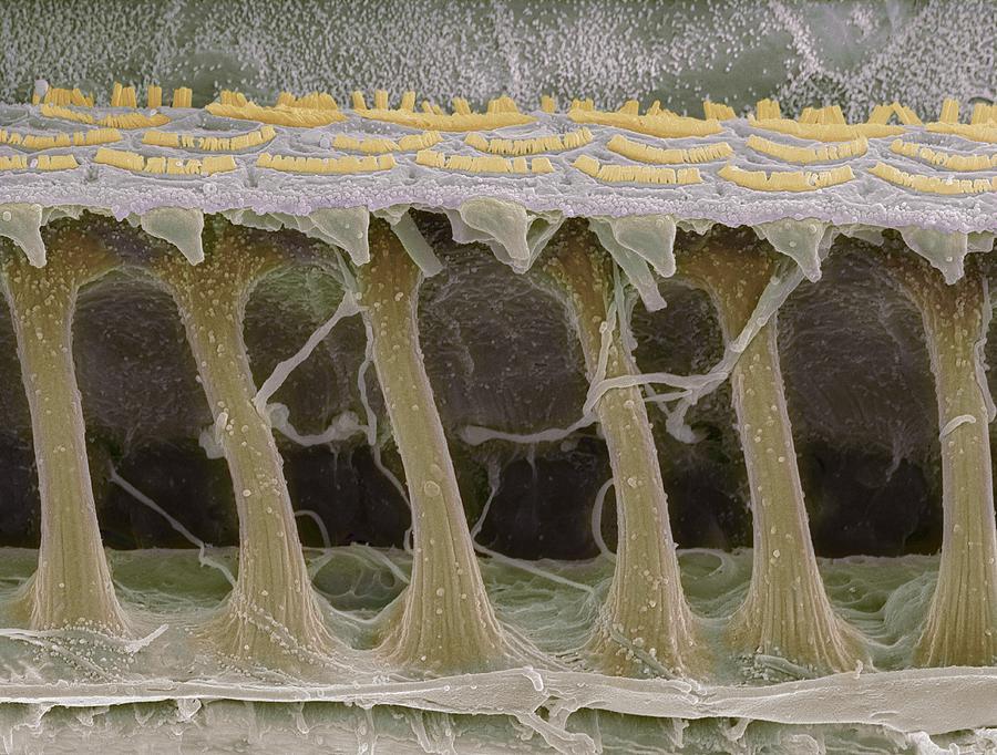 Inner Ear Hair Cells, Sem Photograph