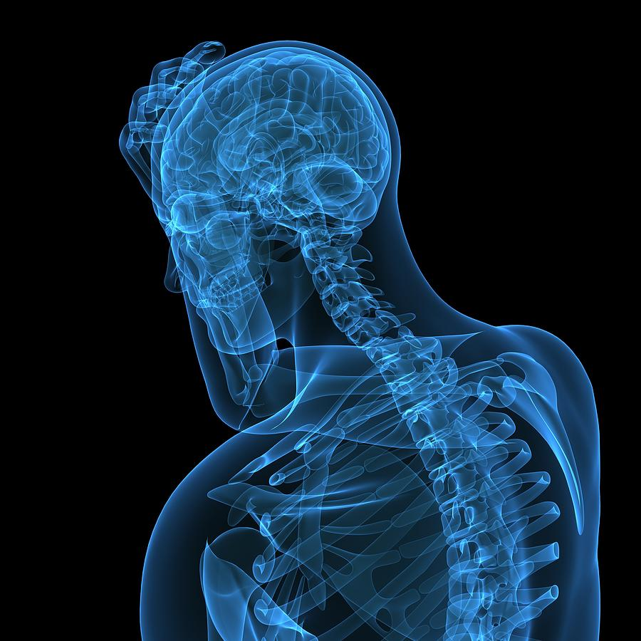 Headache, Conceptual Artwork Photograph